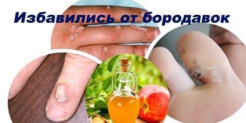 Лечение бородавок народными средствами